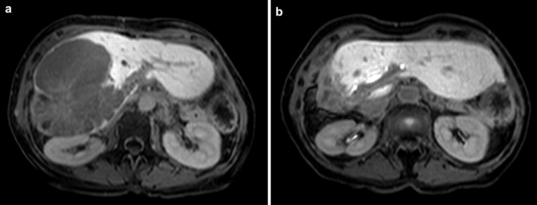Ct Guided High Dose Rate Brachytherapy Of Metachronous Ovarian Cancer Metastasis To The Liver Initial Experience