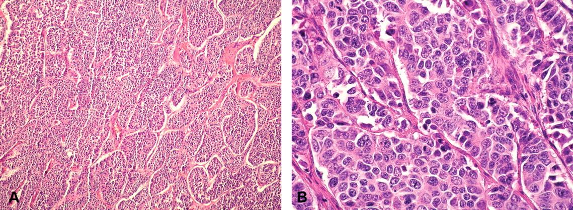 cum s- au vindecat negii cancer hepatic nursing