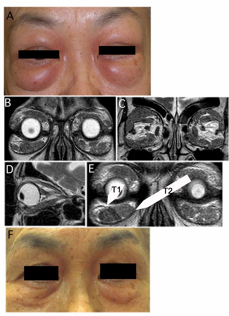 IgG4-related Inflammation of the Orbit Simulating Malignant Lymphoma