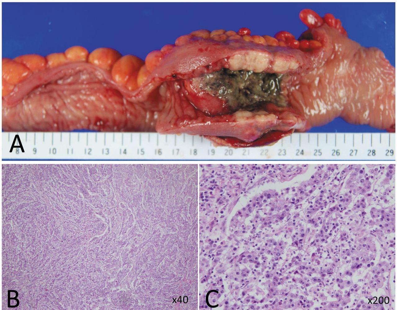 metastatic cancer in colon)