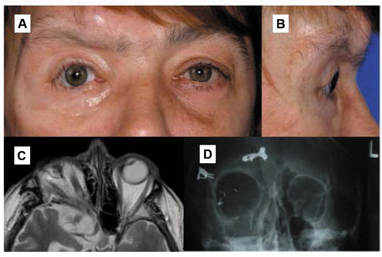 ipsilateral sphenoid wing dysplasia, orbital plexiform, Human Body