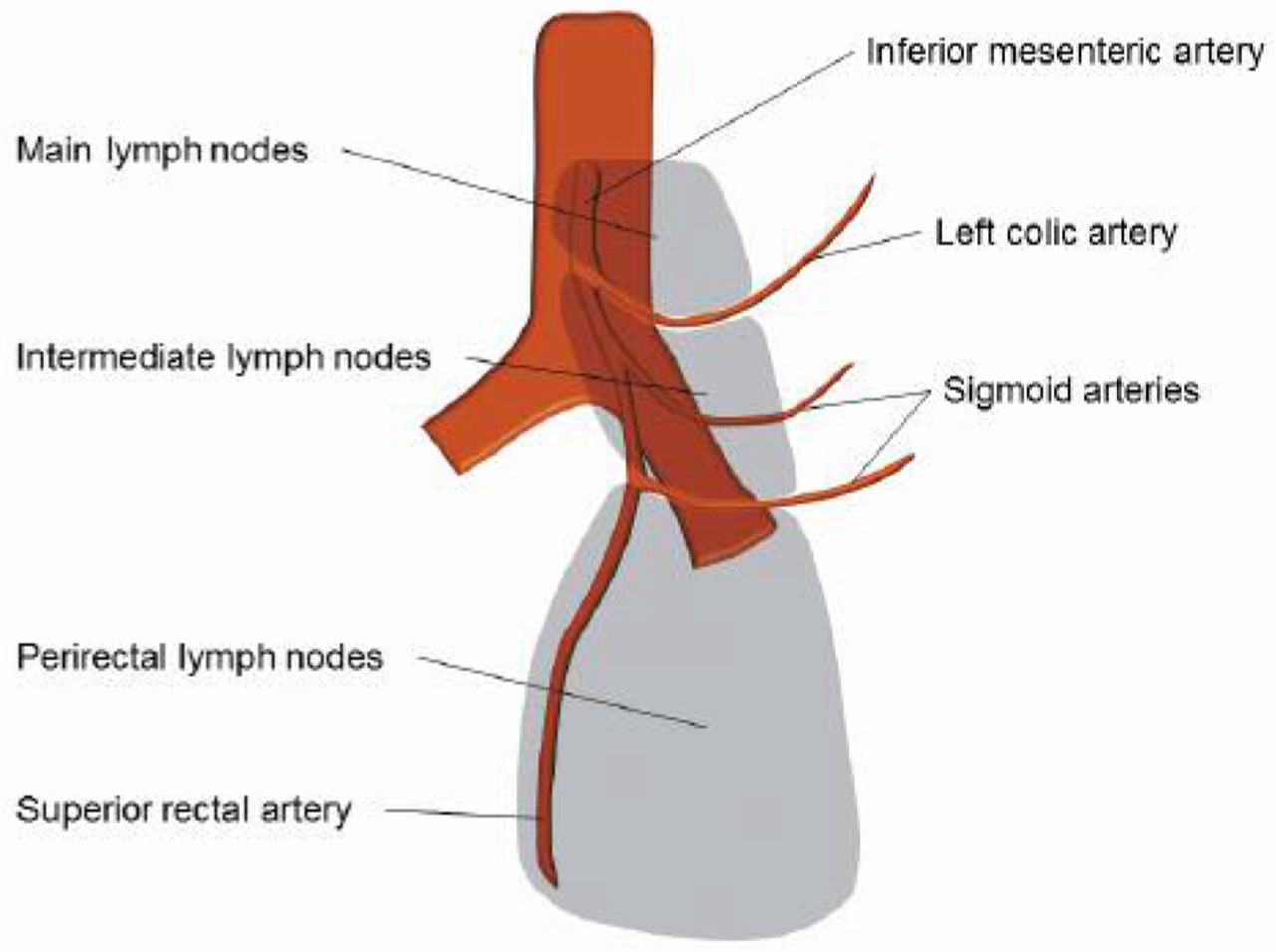 Index Of Estimated Benefit From Lateral Lymph Node Dissection For Middle And Lower Rectal Cancer
