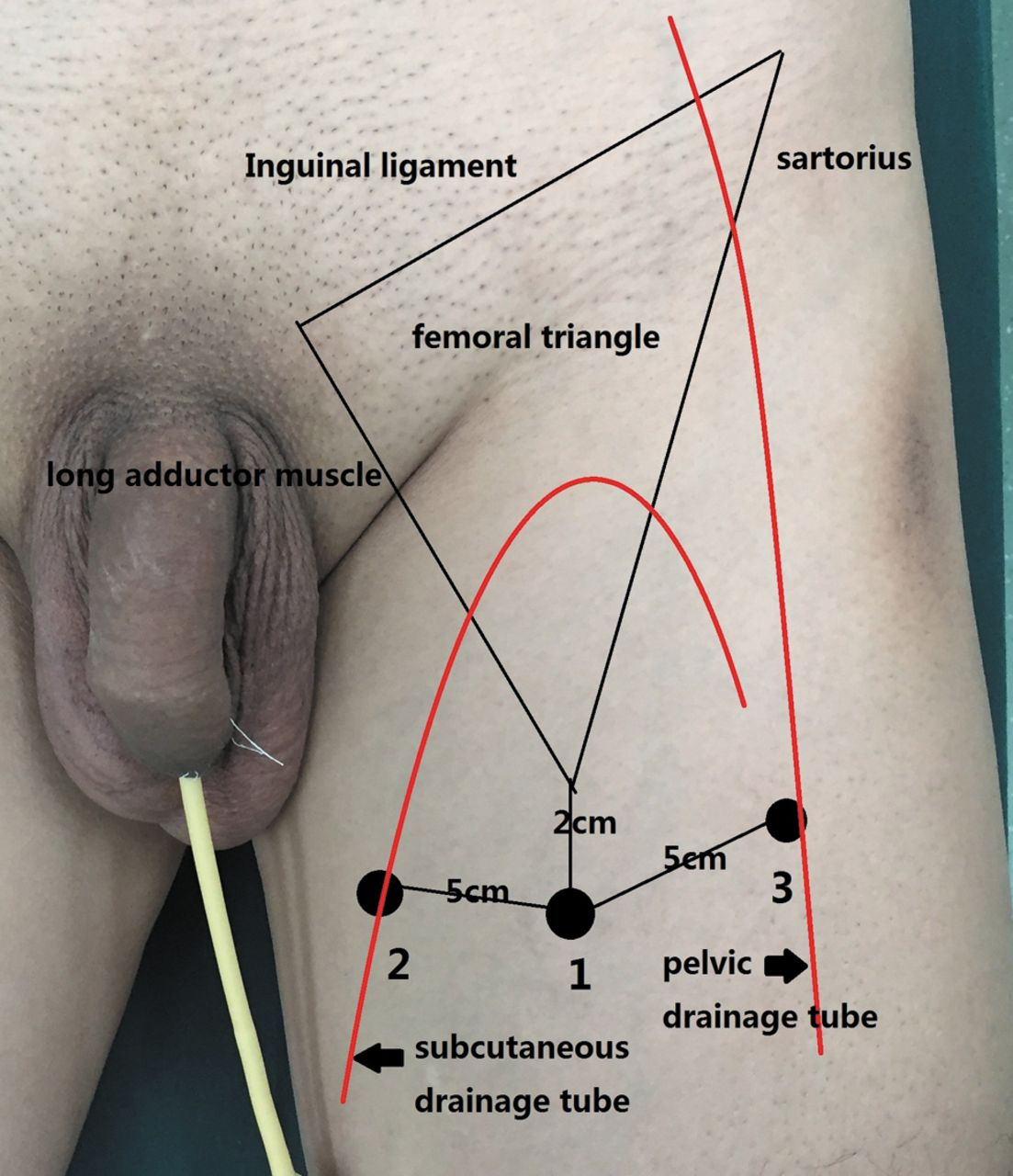 Comparison Of Efficiency Of Video Endoscopy And Open Inguinal Lymph