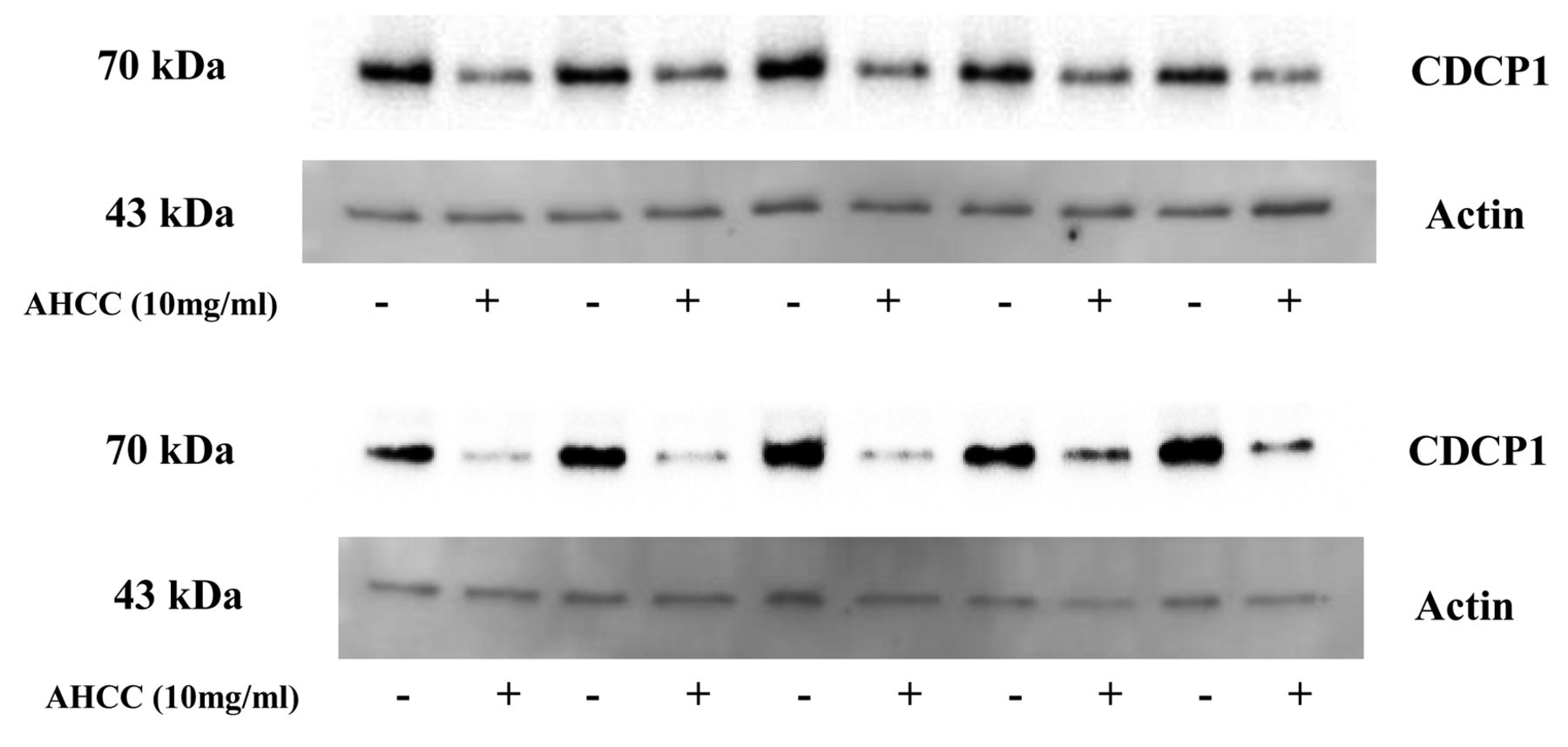 CUB Domain-containing Protein 1 (CDCP1) Is Down-regulated by