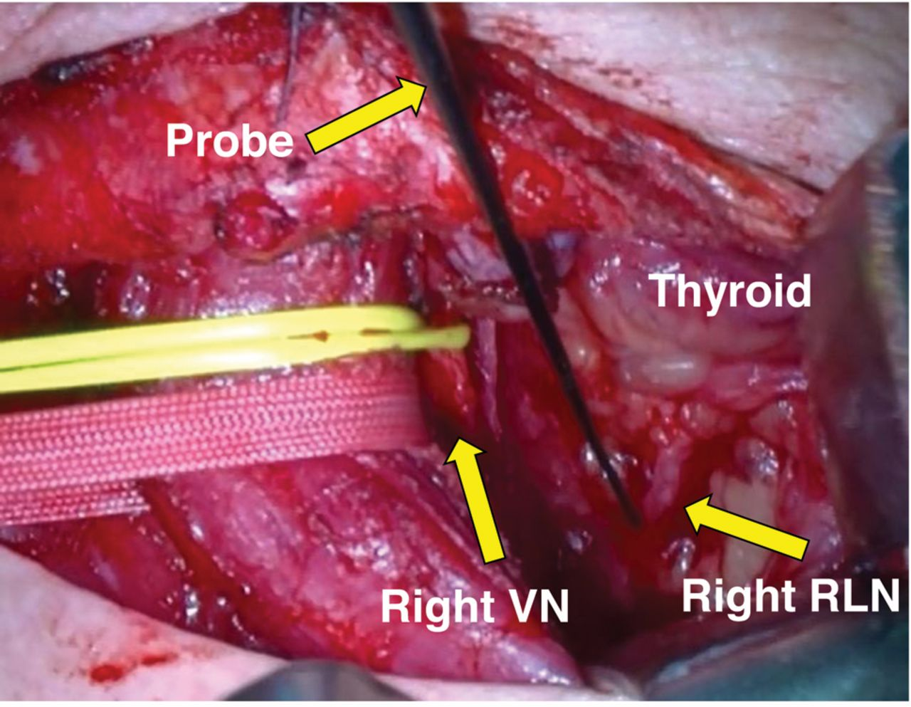 A Strategy for Using Intraoperative Nerve Monitoring During ...